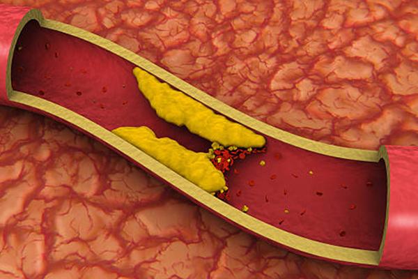 ما هو الكوليسترول وما هي أضراره