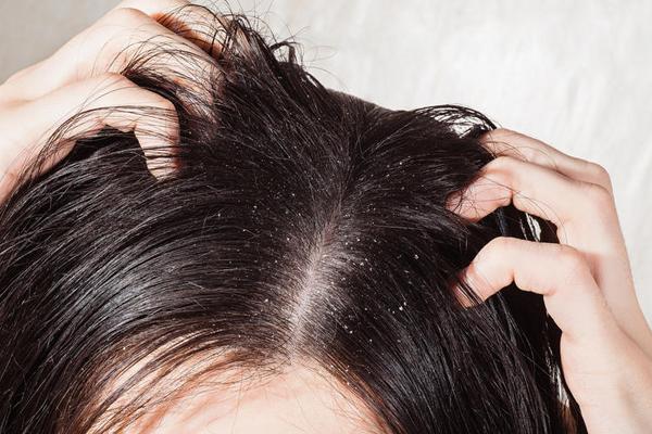 علاج تساقط الشعر ومشاكل القشرة ..بخلطات طبيعية