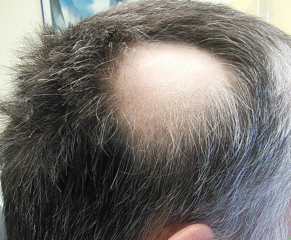 """سقوط الشعر أو ما يطلق عليه """"الثعلبة"""" ... الأسباب وطرق الوقاية"""