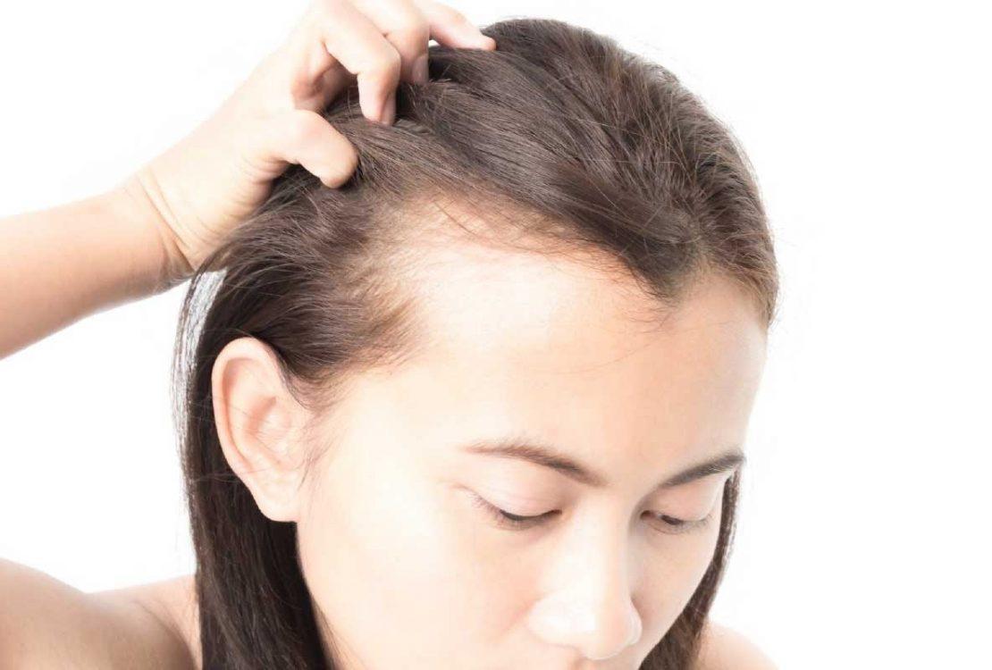 6 أسباب لتساقط الشعر المستمر عند النساء، عليكِ التعرف عليها